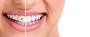 family dental care in bloomingdale